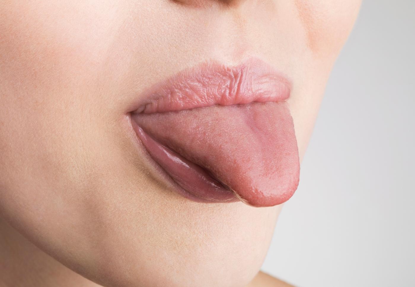 lengua mujer salud manchas