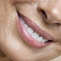 Mujer sonriendo muestra los dientes