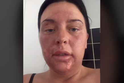 Tiktok mujer se quema la cara escalfando un huevo